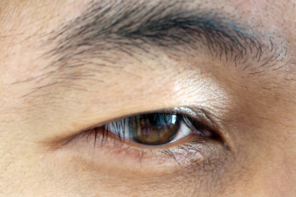 Droopy Eyelid Surgery: Your Questions on Ptosis Correction Answered