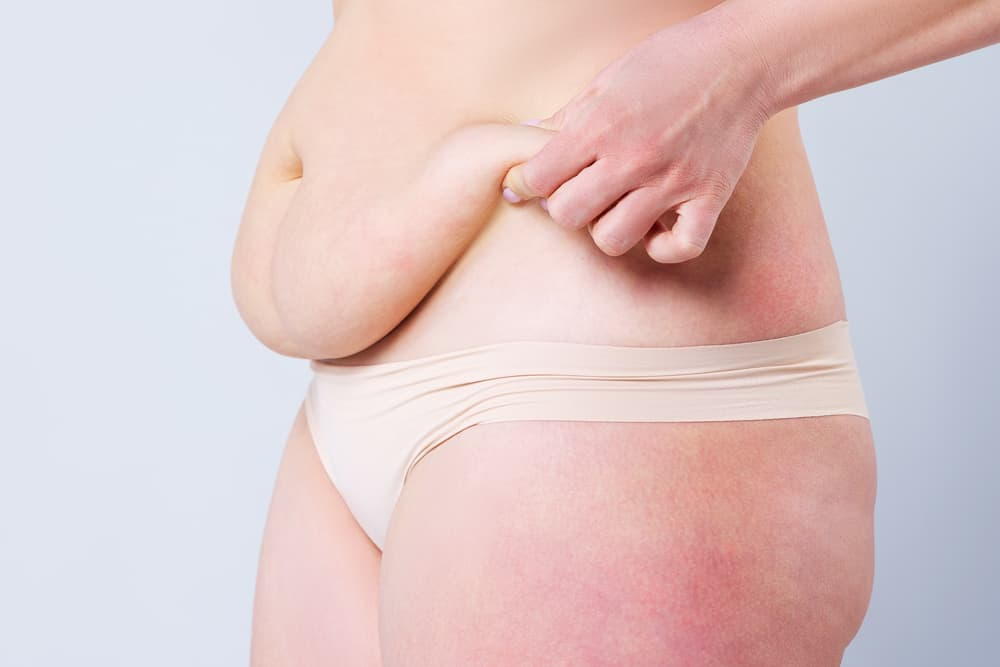 Which Is More Suitable: Tummy Tuck or Liposuction?
